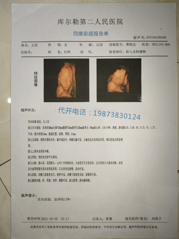 优化怀孕第37周双胞胎b超图先兆性流产的怀孕b超单怀